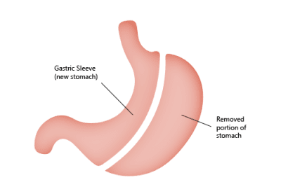 Gastric Sleeve Surgery in Mexico Details