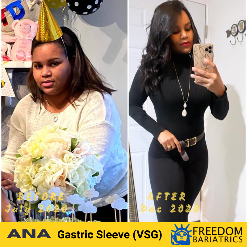 Ana Before and After Success - Freedom Bariatrics - Dr Montalvo